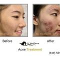 Medical, Surgical & Cosmetic Dermatology Irvine   OC MedDerm Image 2