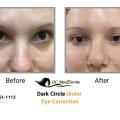 Medical, Surgical & Cosmetic Dermatology Irvine   OC MedDerm Image 4